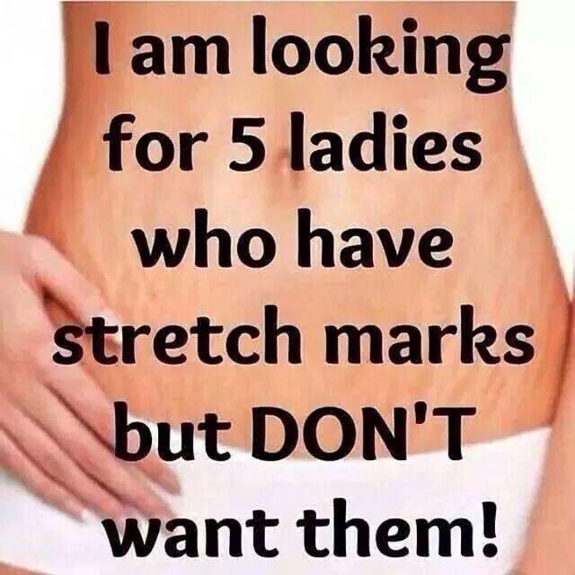 Looking For 5 Ladies Or Men That Have Stretch Marks And