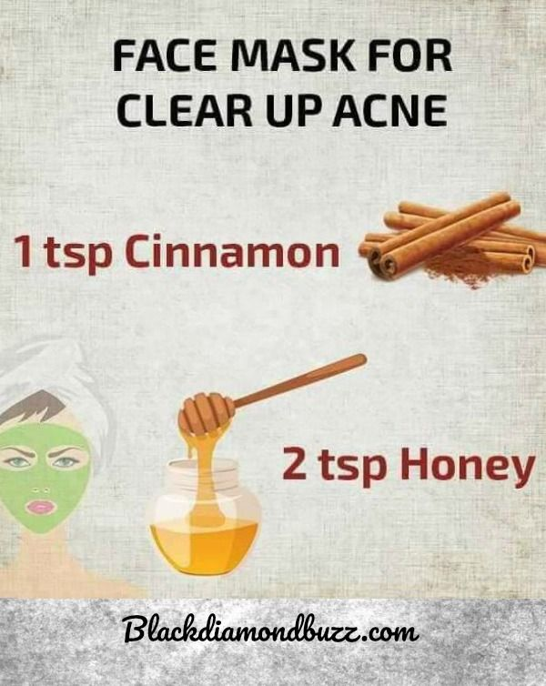 Acne Removal - Face Mask  for Clear Up Acne Scars