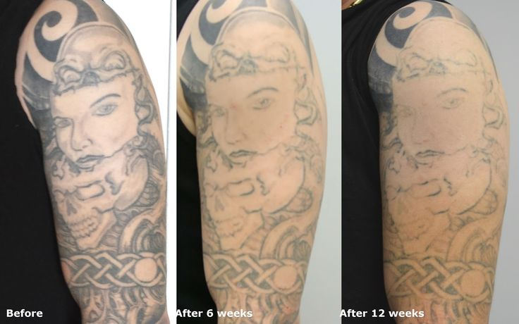 58 best tattoo removal guide how to remove tattoo for How many sessions to remove a tattoo