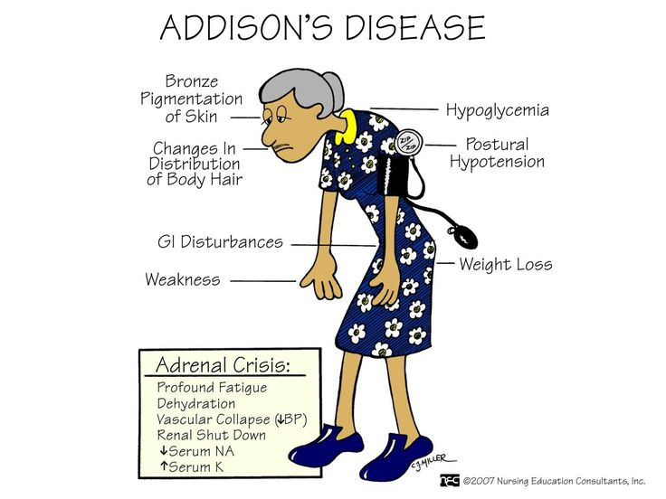 addison disease symptoms in womenNursing 3122 Holden Flashcards Chapter 65 StudyBlue itL4QJSB