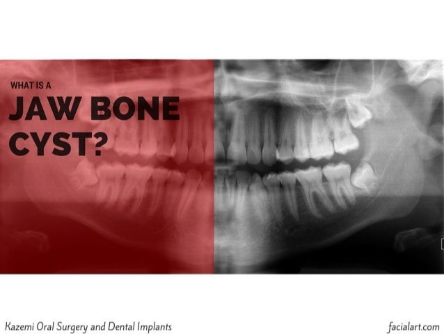 What is a Jaw Bone Cyst | Kazemi Oral Surgery