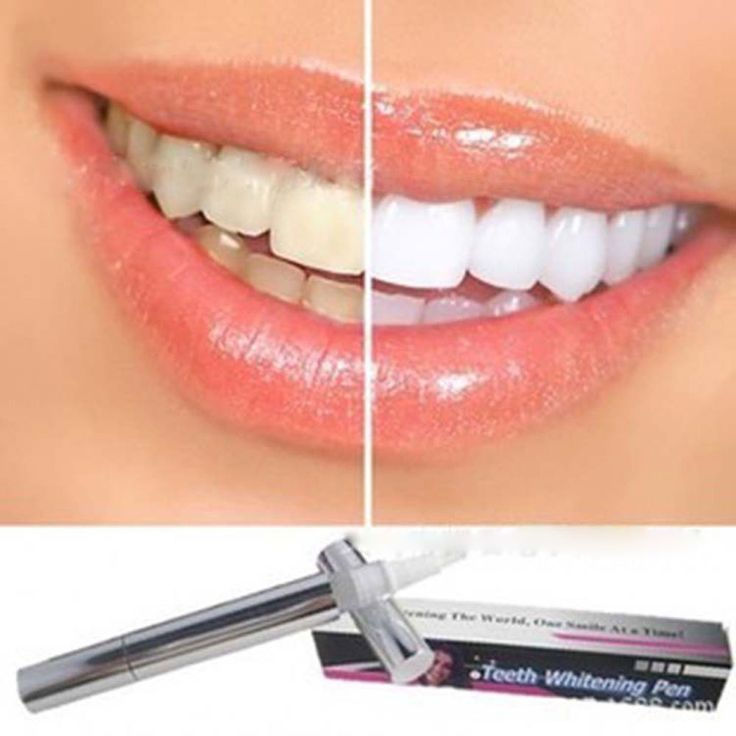 新しいファッション歯漂白ホワイトニングペン歯科スケーラーゲル歯漂白汚れすすデンタルケア歯ホワイトニング機器