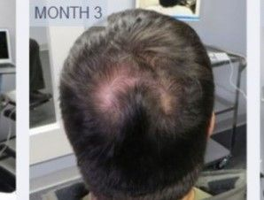 Scalp Med Hairloss Formulas for Men and Women | As Seen On TV Items