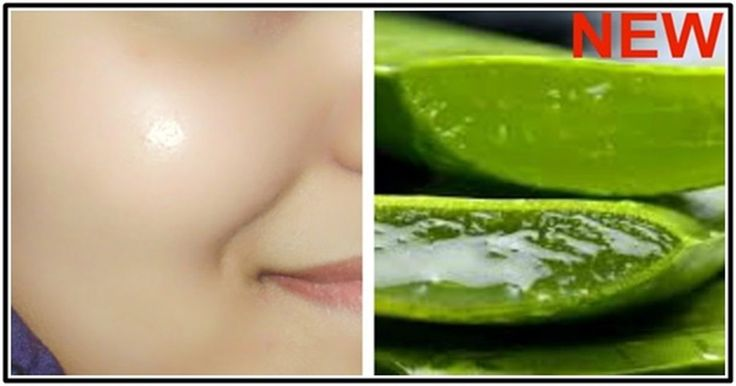 How To Get Clear, Glowing, Spotless Skin By Using Aloe Vera Gel via @dailyhealthpost