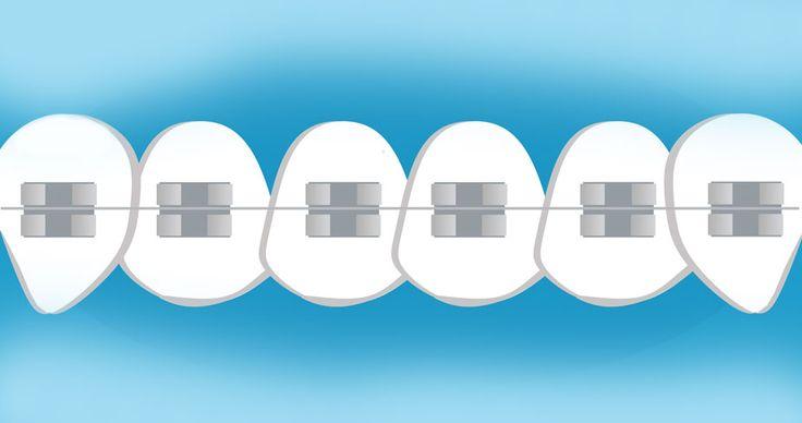 APARELHO-DENTÁRIO-clinicas-dentárias-aparelhos-dentários-ortodontia-clinica-de-aparelhos-aparelhos-nos-dentes-dentes-tortos-alinhar-os-dentes-dentes-aparelho-preço