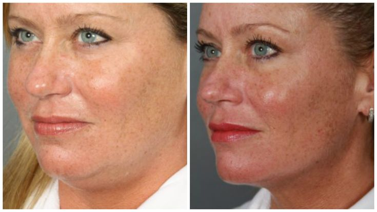 If there's a little more fat and scoop to your neck and chin line than there used to be, chin and facial liposuction could be the answer to your concerns.