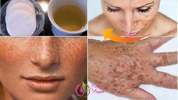 Doğal yöntem ile cildinizi birkaç dakika içinde lekelerden arındırıp temizleyin!