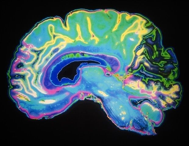 Neuroscientists take new approach to addiction research with focus on quantifying craving in the brain