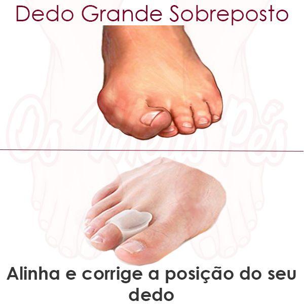 Separador de dedos com anel em gel, obriga o dedo a manter-se na posição correcta evitando sobrepor-se ao seguinte.Alivia os sintomas causados pelo Joanete.