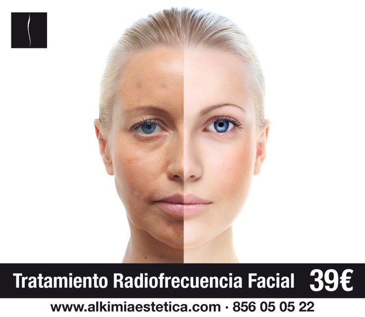 ¿Flacidez en la piel de tu cara y cuello?  No te preocupes, tu cara volverá a ser la misma de siempre con nuestro tratamiento de radiofrecuencia por tan solo 39€  La radiofrecuencia es un método avanzado de rejuvenecimiento facial, ideal para aquellas personas que presentan una ligera flacidez en la piel de la cara y cuello. Si se coge a tiempo el ovalo de la cara recupera su forma. Su efecto, la piel más tersa y luminosa.