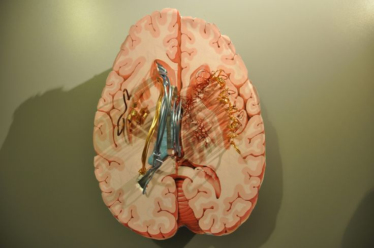 Basal ganglia and internal capsule