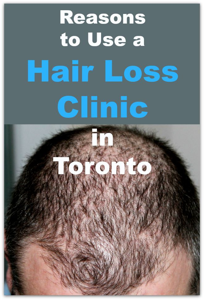 Reasons to Use a Hair Loss Clinic in Toronto
