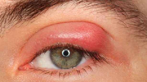 Sty - Causes, symptoms, signs and other risk factors