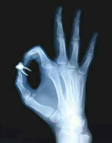 nice Dental Radiology Humor | Dentagama by http://dezdemonhumoraddiction.space/radiology-humor/dental-radiology-humor-dentagama/