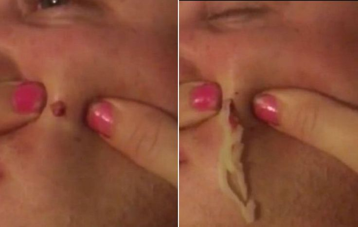 Try Watching This Disgusting Pimple-Popping Video Without Losing It  http://www.menshealth.com/guy-wisdom/disgusting-pimple-popping-video?utm_source=facebook.com