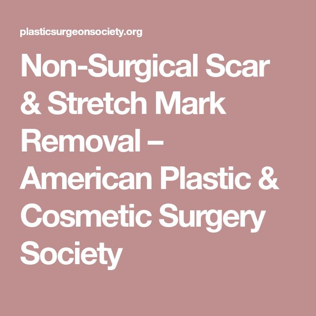 Non-Surgical Scar & Stretch Mark Removal – American Plastic & Cosmetic Surgery Society