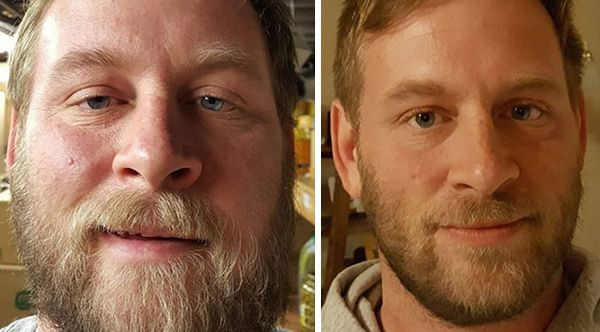 These Before-And-After Photos Show What Happens When You Quit Drinking Alcohol