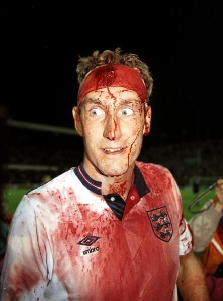 Terry Butcher is left bloodied and scarred after the World Cup Qualifier match…