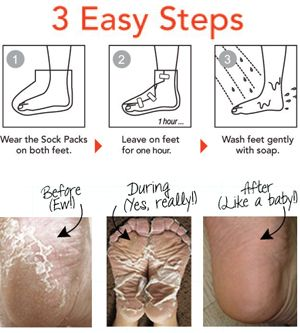 Baby Foot Lavender Scented Deep Skin Exfoliation for