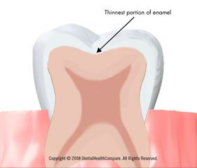Strengthen Tooth Enamel Through Re-Mineralization