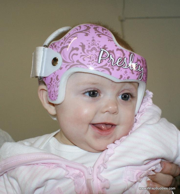 Plagiocephaly torticollis doc band baby helmet for Baby cranial helmet decoration