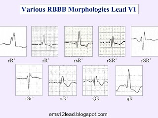 Right Bundle Branch Block | EMS 12-Lead. All of these QRS complexes are different. Most are positively deflected but some are negatively deflected. Most start with an R wave, but a few start with a Q wave. However, they all share one important feature.  They all have a terminal R wave!  Why?  Ask yourself a question. If the right bundle branch is blocked, which ventricle depolarizes first?  The left ventricle!  So which ventricle depolarizes last?  The right ventricle!  What is the only…