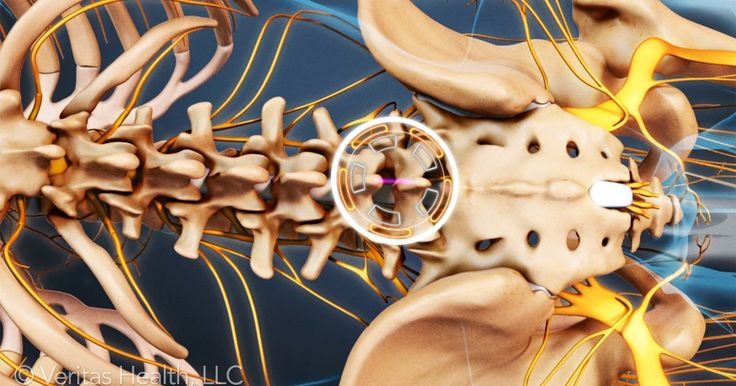 Sometimes Conservative Disc Treatment is not enough - in this case, surgery may be the best option.