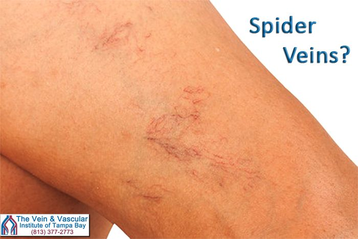 If you have developed spider veins and they are causing you:  - Achy legs - Night-time leg cramps - A feeling of heaviness in the legs  At The Vein and Vascular Institute of Tampa Bay, our spider vein specialists can quickly  remove your spider veins using sclerotherapy injections so you can enjoy healthy legs again...free from pain and free from spider veins.  https://www.tampavascularsurgeon.com/service/spider-veins-treatment-tampa/   #SpiderVeinTreatmentTampa #SpiderVeinSpecialistTampaFL