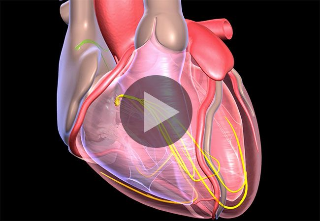 See What Happens In A Heart Attack Vs Cardiac Arrest Cardiac