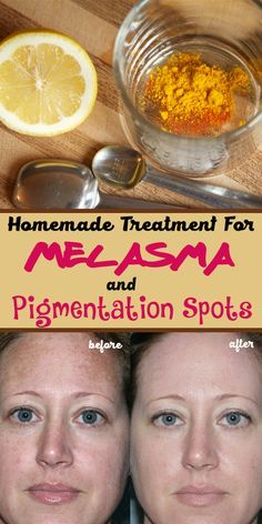 Get rid of melasma and pigment spots with only 2 natural, ingredients.