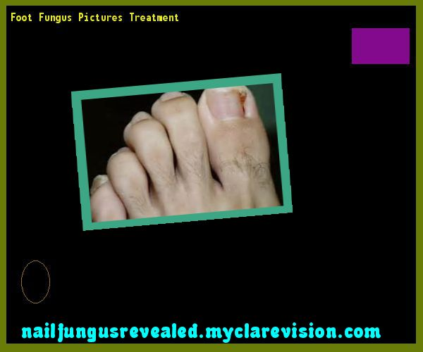 Foot fungus pictures treatment - Nail Fungus Remedy. You have nothing to lose! Visit Site Now
