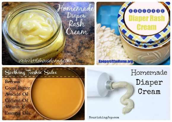 20 DIY natural baby products - Make your own diaper rash ointment