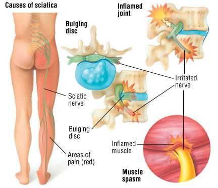 Sciatica is a painful syndrome caused by compression or irritation of the sciatic nerve. The sciatic nerve runs deep through the buttock and down the leg.Symptoms of sciatica may include the following:  pain in the buttock or down the leg numbness muscular weakness pins and needles or tingling difficulty moving or controlling the leg. #PinchedNerveInLowerBack