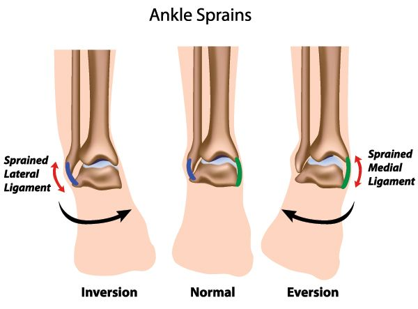 Ankle sprains are extremely common. The severity of an ankle sprain depends on how much of the ligament tears, ranging from grade 1 (mild) to grade 3 (complete). Learn more about them and how they're treated on our website.