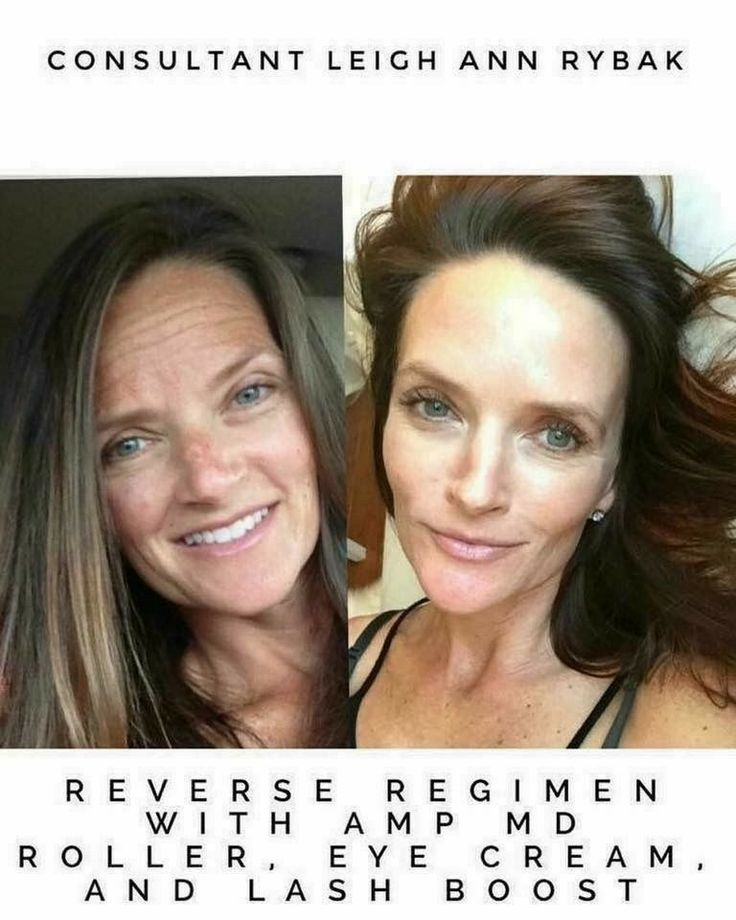 Rodan and Fields Reverse regimen before and after results. Reverse helps remove dark spots on your face and repair sun damaged skin. Get better results with AMP MD Roller 2.0. #lashboost |skin care routine| skin care products| clear skin tips| Anti-aging skin care|