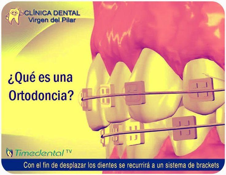 Video: ¿Qué es una ortodoncia? por Clínica Dental Virgen del Pilar   Directorio Odontológico