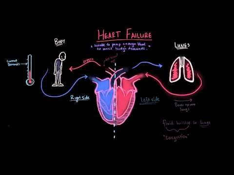 Congestive Heart Failure (CHF) Explained - MADE EASY - YouTube