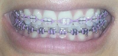 braces colors - lavender