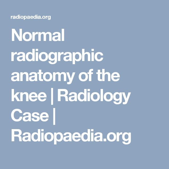 Normal radiographic anatomy of the knee | Radiology Case | Radiopaedia.org