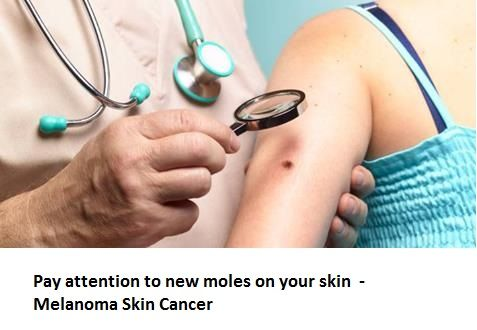 Pay attention to new moles on your skin – new research suggests it's new sun spots and not existing moles that make up the vast majority of skin cancer cases.  Italian scientists out of the University of Modena say that melanomas from existing moles were even thinner, handing patients a better prognosis compared to their peers diagnosed from skin cancers tied to new sun spots on their skin.
