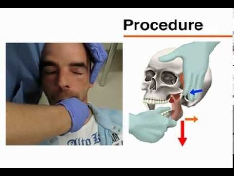 125 Best Images About Tmj Tmd Oa On Pinterest Magnetic