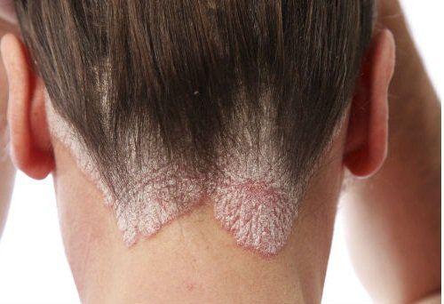 Remedios caseros para combatir la caspa y la seborrea - Mejor con Salud