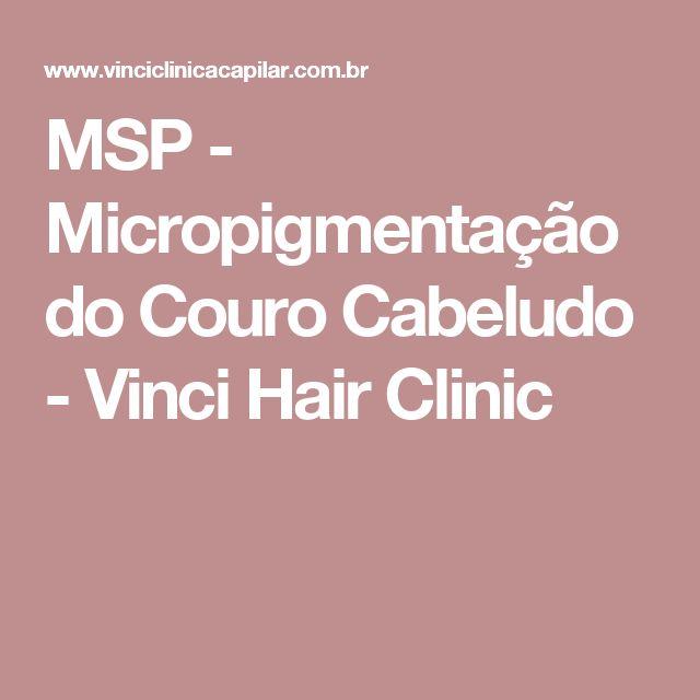 MSP - Micropigmentação do Couro Cabeludo - Vinci Hair Clinic