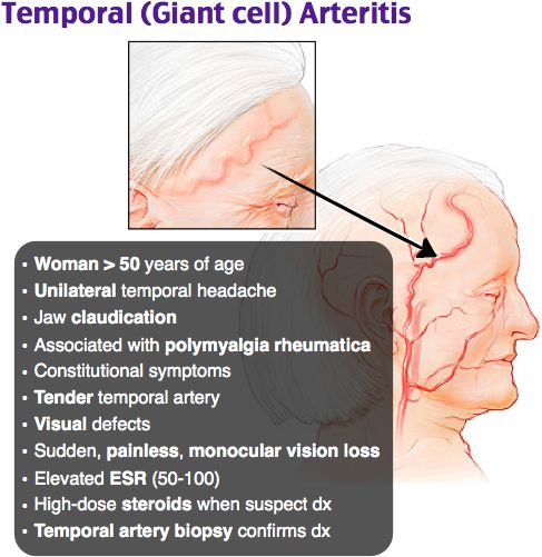 Elderly females Unilateral temporal HA, jaw claudication Ophthalmic artery occlusion → irreversible blindness PMR ↑ ESR, ↑ CRP Dx: temporal artery biopsy Immediate high-dose steroids. >50 yo, >50 ESR