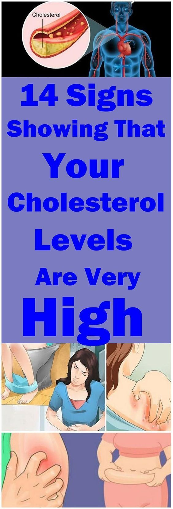 14 Signs Showing That Your Cholesterol Levels Are Very High#health#cholesterol#high #highcholesterol