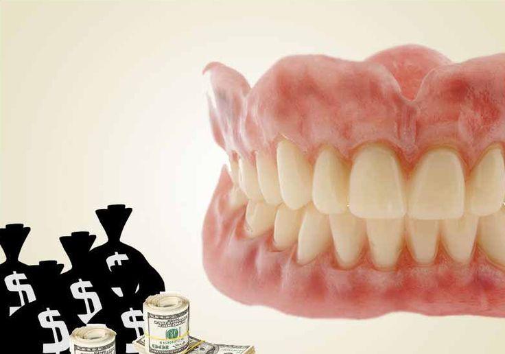 Glasgow Denture Studio Offers 100 Off on Implants through Request Voucher!