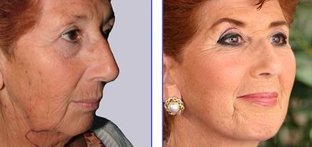 Age-Regression Facial Gymnastics: Manual Facelift Workouts To Appear Fresh And F…