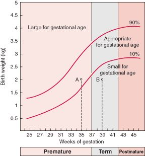 small for gestational age chart - Google Search