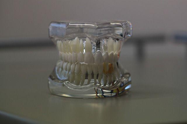 Wtryskarka protetyczna to kolejne urządzenie medyczne, które wzięliśmy na wokandę! http://www.opella.com.pl/technika/wtryskarka-protetyczna-brak-watpliwosci-co-do-zalet/ #health #dentist