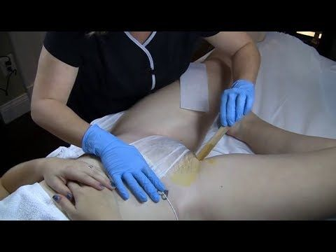 Remove Unwanted Hair From Your Private Parts Naturally With THIS 1 Ingredient  Painless - YouTube